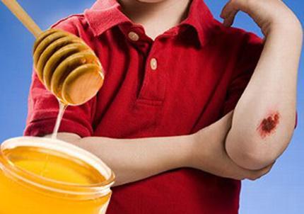 Công dụng trị lành vết thương với mật ong