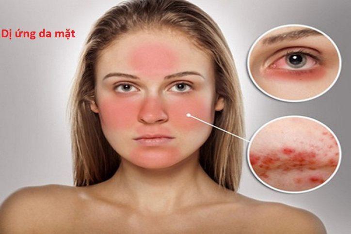 Da mặt bị dị ứng